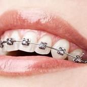 Ortodoncia de autoligado (rápida)