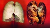 Normal vs Lung Cancer