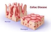 Symptoms of celiac disease are..