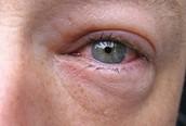 Solving eye problems
