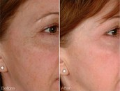 Best Results from Laser Skin Treatments in Adelaide