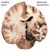 An Alzheimer Brain