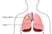 Lung cancer-uncontrolled growth of abnormal cells in one or both lungs