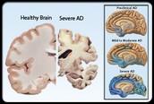 Severe Alzheimers