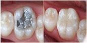 Operatoria y Estética Dental (Curaciones)