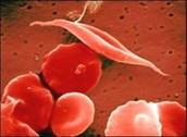 Blood cells wit HS
