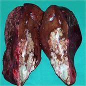 Inside bad liver