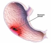 What is Stomach Cancer?