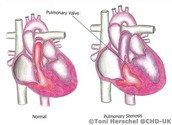 Heart Problems with Noonan Syndrome