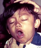 Child suffering from pertussis