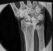An X-ray of the wrist using the new x-ray machine.