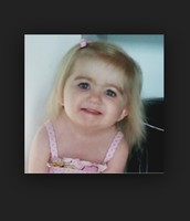 Child with Diamond Blackfan-Anemia
