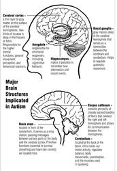 Ways to diagnose autism;