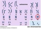 Trisomy 18 Karotype