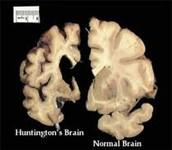 Symptoms of Huntington's Disease