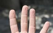 Osmosis en los dedos al exponerse mucho al agua.