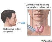 Radioactive Iodine Treatment: how the treatment is used and monitored