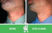 Use SOOTHE for Razor Burn