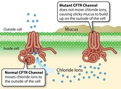 Cause of Cystic Fibrosis