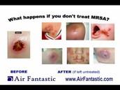 Untreated MRSA