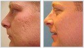 Choosing Experts for Acne Scar Treatment in Adelaide
