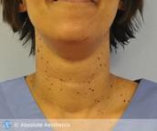 Dermatosis on the neck