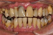 Gum disease from tobacco