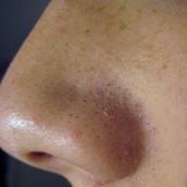 Large Pores / Blackheads