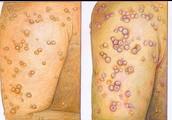 Smallpox blisters