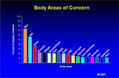Body Areas of Concern for BDD suffers