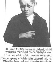 A Child Injured While Working