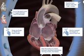 The Reality of AFIB®