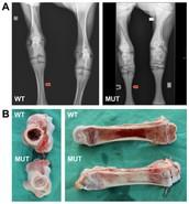Background on Osteopetrosis