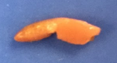 Pancreas-Digestive System