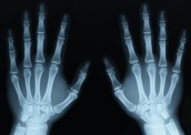 X is for X-ray
