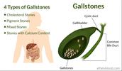 Causes of Gallstones