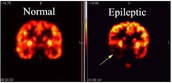 The difference of brain activity between people with Epilepsy and the non-epileptic.