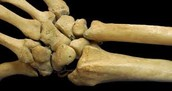 Healthy bone