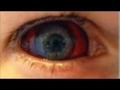 un yeux de une personne avec ebola