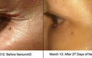 Reduction of fine lines up to 50%