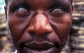 African River Blindness