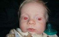 This is a little boy diagnosed with Albinism