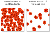 Normal Blood vs Anemic Blood.