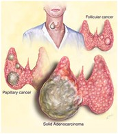 How the anaplastic thyroid cancer can progeress from other types of thyroid cancer