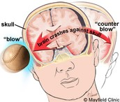 Causes of Concussion