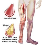 Clogged Arteries and Leg Discoloration