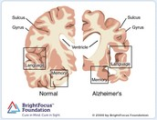 Effects Of Alzheimer's on the brain