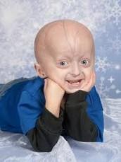 What is Progeria?
