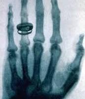 1st x-ray