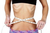 About 4% of  anorexia  idividuals die from complications of the disease